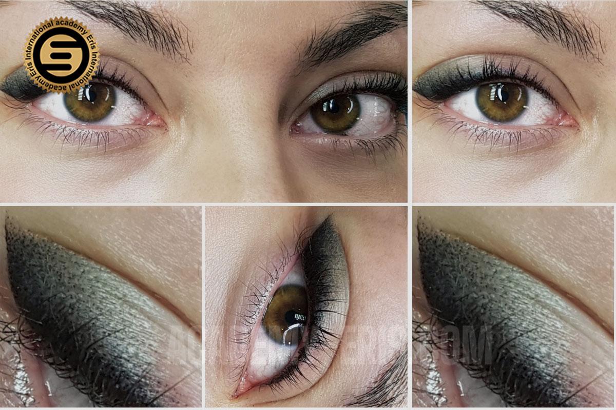 میکروشیدینگ چشم چیست؟