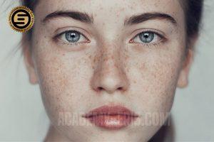 رفع لک صورت با لیزر